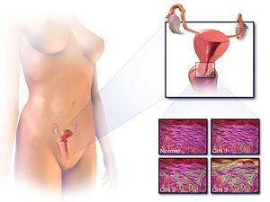cervical-ca-1