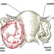 ovarian-cancer-res-title