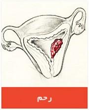 uterine-ca